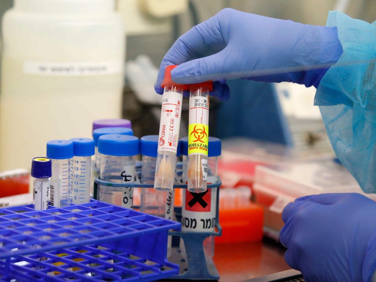 Еще у 34 жителей Тверской области обнаружили коронавирусную инфекцию