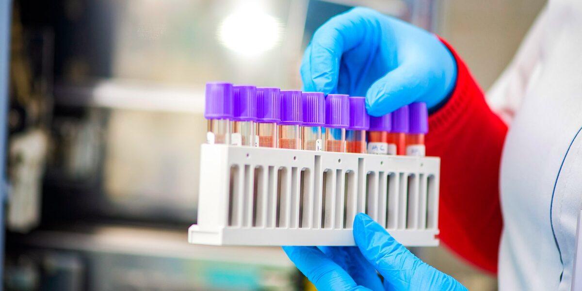 В Тверской области число больных коронавирусом выросло до 329 человек