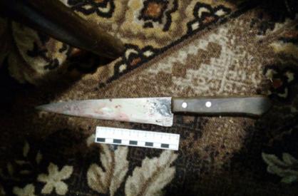 Тверские следователи установят причины смерти мужчины от ножевого ранения