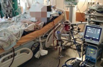 Тверские врачи спасли 16-летнюю девочку, умиравшую от ковида